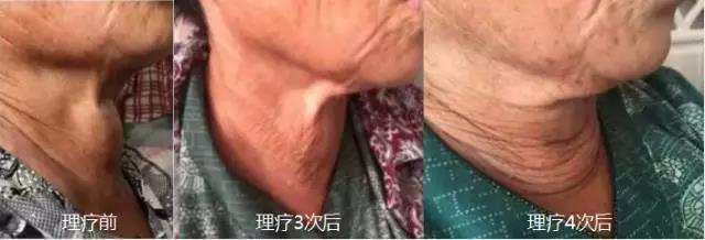 綠之韻-太赫茲波綠韻細胞理療儀-甲狀腺腫塊案例