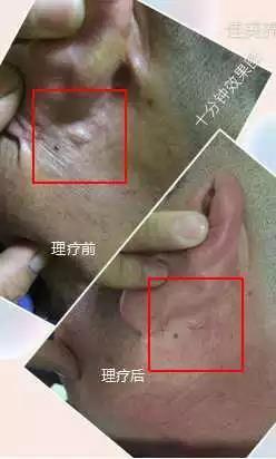 綠之韻-太赫茲波綠韻細胞理療儀-囊腫案例