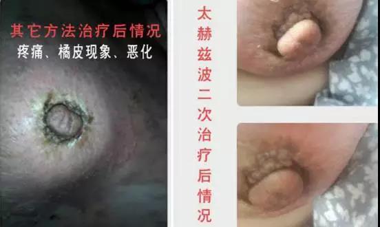 綠之韻-太赫茲波綠韻細胞理療儀-乳腺案例