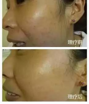 绿之韵-太赫兹波绿韵细胞理疗仪-痘印雀斑案例