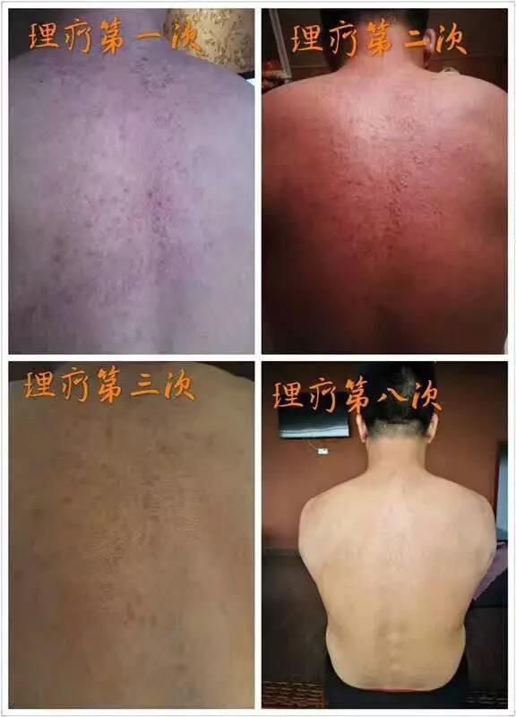 绿之韵-太赫兹波绿韵细胞理疗仪-背部皮癣案例
