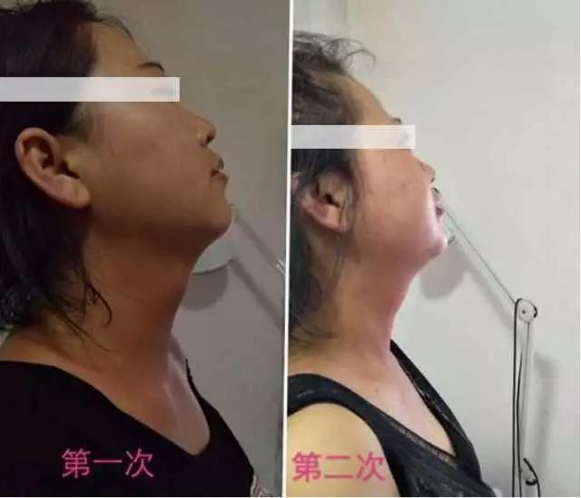 綠之韻-太赫茲波綠韻細胞理療儀-脖子腫大