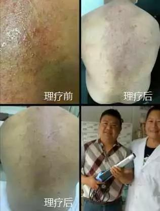 綠之韻-太赫茲波綠韻細胞理療儀-濕疹案例