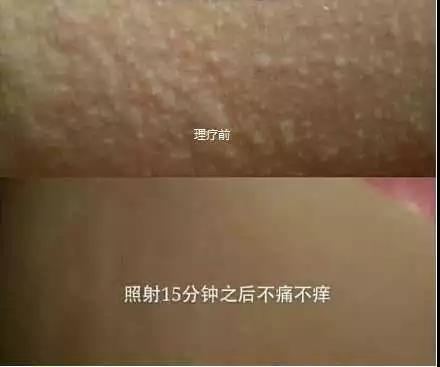 绿之韵-太赫兹波绿韵细胞理疗仪-风疹案例