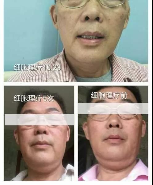 綠之韻-太赫茲波綠韻細胞理療儀-甲狀腺腫大案例