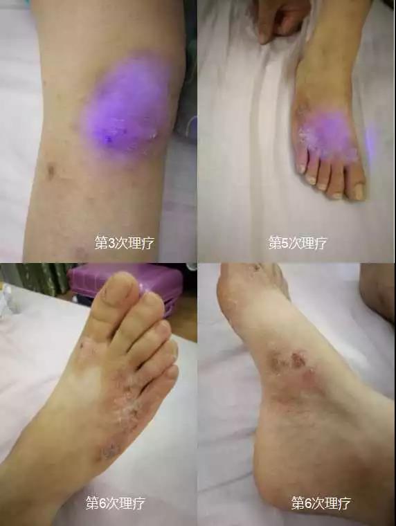 綠之韻-太赫茲波綠韻細胞理療儀-糜爛型濕疹案例