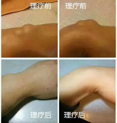 綠之韻-太赫茲波綠韻細胞理療儀-腱鞘炎案例